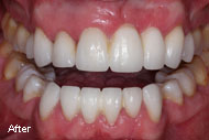Pictures and Images of Dental Bridge Before After